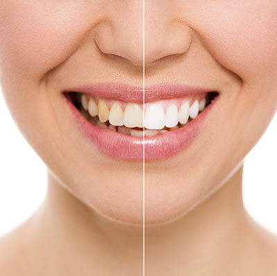 Teeth Whitening in Glasgow